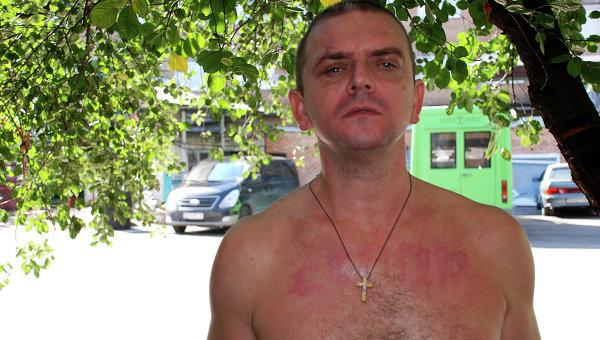 Ополченец Донецкой народной республики (ДНР) из Крыма демонстрирует ожоги