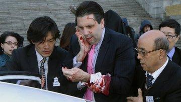 Посол США в Южной Корее Марк Липперт после нападения неизвестного
