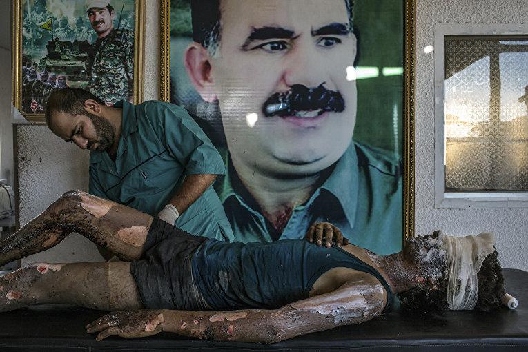 Боец ДАИШ в курдском госпитале. 1 августа 2015. Маурисио Лима
