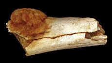 Кость ноги, пораженная остеосаркомой