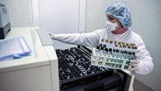 Врач готовит образцы для тестирования на туберкулез на Украине. Архивное фото