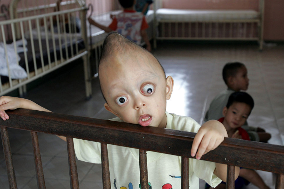 Xuan Minh, жертва «Агента Оранж».
