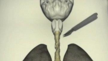 Фрагмент видео Первая в России операция по пересадке самовырастающей трахеи