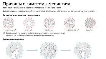 Причины и симптомы менингита